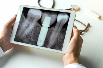 Dental X-Rays in Winter Park FL