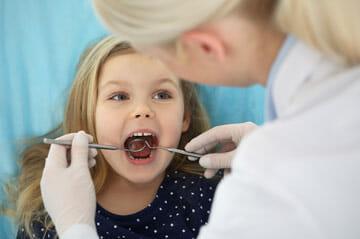 Dental Sealants in Winter Park for kids