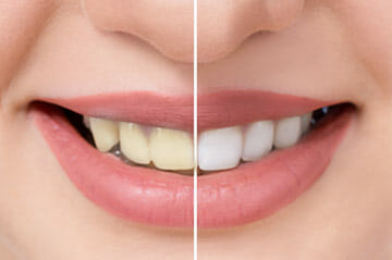 Teeth Whitening in Winter Park Florida
