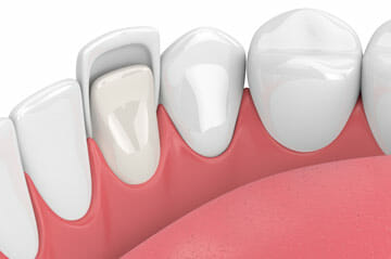 Dental Veneers in Winter Park Florida